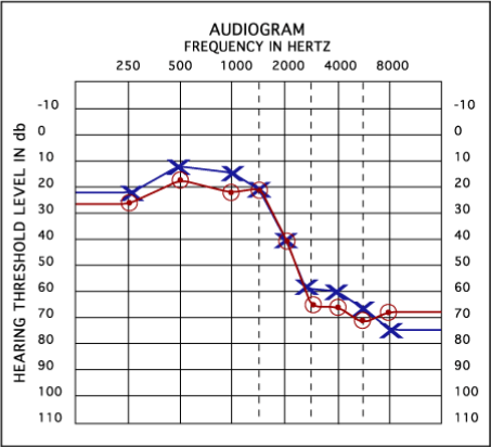 Audiogram  fequency in hertz